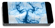 Angiogram Of Embolus In Cerebral Artery Portable Battery Charger
