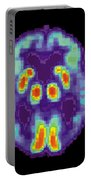 Pet Scan Of Alzheimers Disease Brain, 2 Portable Battery Charger