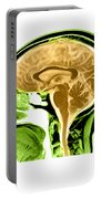 Sagittal View Of An Mri Of The Brain Portable Battery Charger