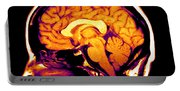 Mri Of Brain Portable Battery Charger