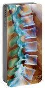 Healthy Lower Spine X-ray Portable Battery Charger by SPL and Photo Researchers