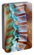 Healthy Lower Spine X-ray Portable Battery Charger