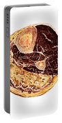 Muscle Degeneration, Fibrosis And Fat Portable Battery Charger