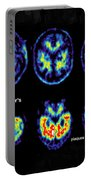 Normal And Alzheimer Brains, Pet Scans Portable Battery Charger