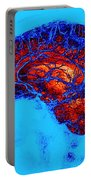 Normal Brain, Swi Mri Portable Battery Charger