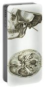 Skull With Head Wound, Illustration Portable Battery Charger