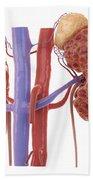 Polycystic Kidney Beach Towel