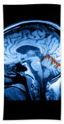 Mri Of Alcoholism Related Vermian Beach Towel