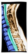 Herniated Disc In Cervical Spine Beach Towel