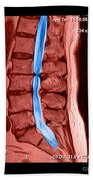 Severe Spinal Stenosis Beach Towel