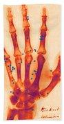 X-ray Of Gunshot In The Hand Beach Towel
