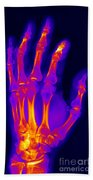 Finger Fracture Beach Towel