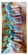 Healthy Lower Spine X-ray Beach Towel