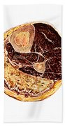 Muscle Degeneration, Fibrosis And Fat Beach Towel