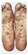 Psoriasis Of Feet, Illustration Beach Towel