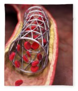 Arterial Stent Fleece Blanket