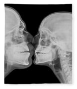 X-ray Kissing Fleece Blanket