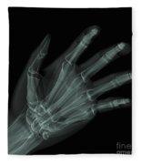 Bones Of The Hand Fleece Blanket