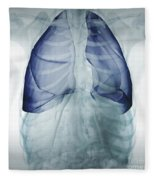 Lungs Within The Chest Fleece Blanket