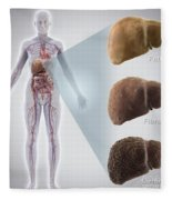 Stages Of Liver Disease Fleece Blanket