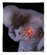 Heart Attack Fleece Blanket