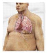 Obesity Fleece Blanket