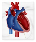 Aortic Valve Fleece Blanket