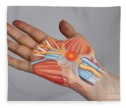 Carpal Tunnel Syndrome Fleece Blanket
