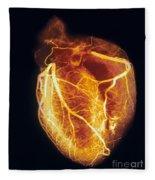 Colored Arteriogram Of Arteries Of Healthy Heart Fleece Blanket