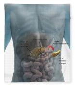 Distal Pancreatectomy Fleece Blanket