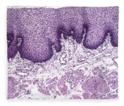 Esophagus Lm Fleece Blanket