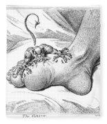 Gout, 1799 Fleece Blanket