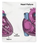 Healthy Heart Vs. Heart Failure Fleece Blanket