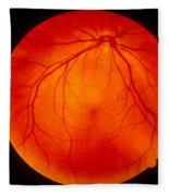 Retina Fleece Blanket