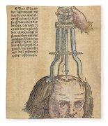 Skull Operation, 1517 Fleece Blanket