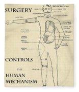 Surgery Controls The Human Mechanism   1906 Fleece Blanket