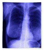 Chest X-ray Of Female Fleece Blanket