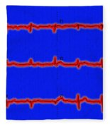 Normal Ecg Fleece Blanket