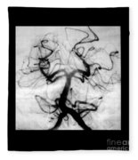 Angiogram Of Embolus In Cerebral Artery Fleece Blanket