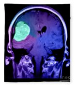 Right Sided Meningioma Fleece Blanket