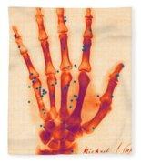 X-ray Of Gunshot In The Hand Fleece Blanket
