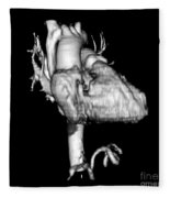 3d Ct Reconstruction Of Heart Fleece Blanket