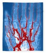 Hand Arteriogram Fleece Blanket