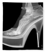 An X-ray Of A Foot In A High Heel Shoe Fleece Blanket