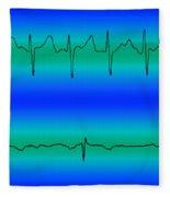 Atrial Fibrillation & Normal Heart Beat Fleece Blanket