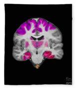 Brain Areas Affected By Alzheimers Fleece Blanket