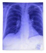 Chest X-ray Fleece Blanket