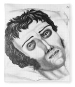 Cholera Victim, 1831 Fleece Blanket