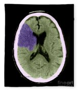 Ct Of Stroke Fleece Blanket