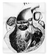 Heart Anatomy, Carl Von Rokitansky, 1875 Fleece Blanket